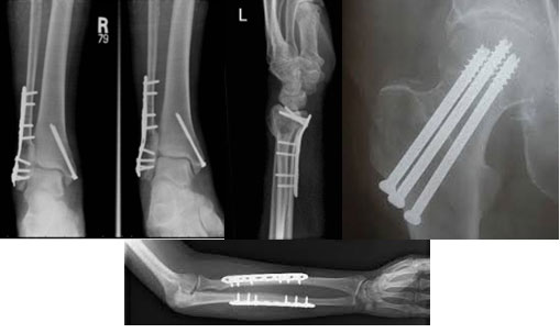 Fracture Care Mark Ganjianpour M D Orthopaedic Surgery