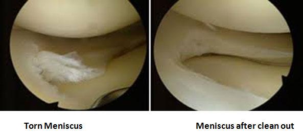how to help repair a torn meniscus